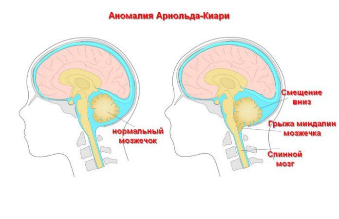 аномалия Арнольда-Киари