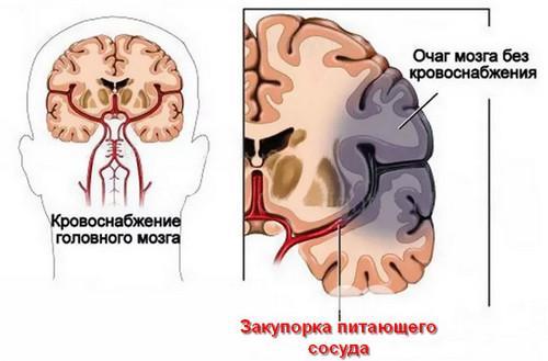стадии развития ишемического инсульта