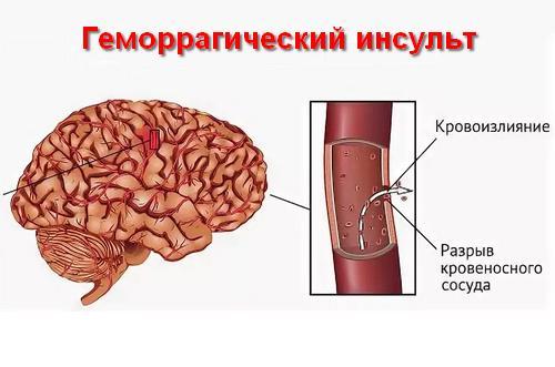 классификация геморрагических инсультов