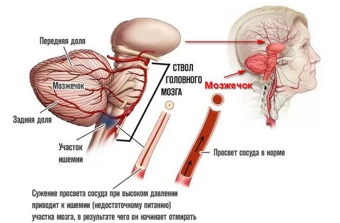 Инсульт мозжечка: симптомы, восстановление и реабилитация