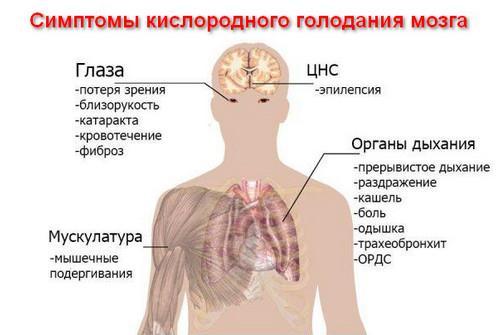 Гипоксия головного мозга - симптомы