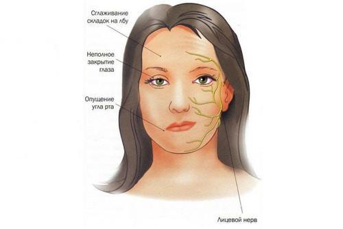 Симптомы вторичного неврита лицевого нерва
