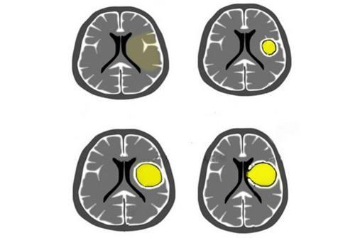 Что такое абсцесс головного мозга
