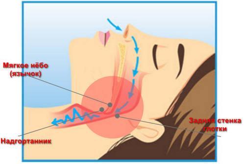 Патогенез развития апноэ сна