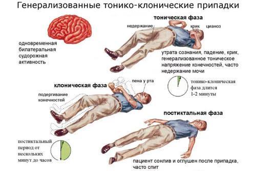 Генерализованные формы эпилепсии