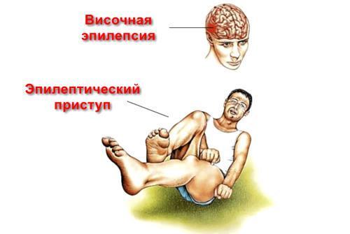 Эпилепсия височной доли