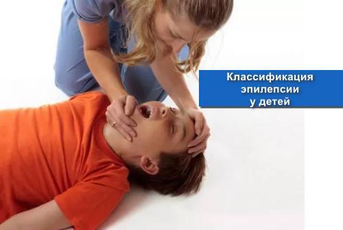 Классификация эпилепсии у детей