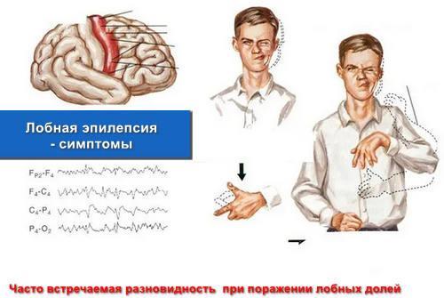 Лобная эпилепсия - симптомы