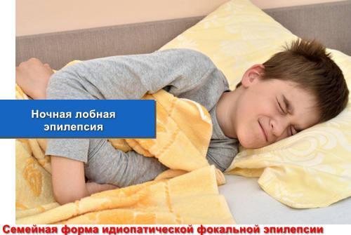 Ночная лобная эпилепсия