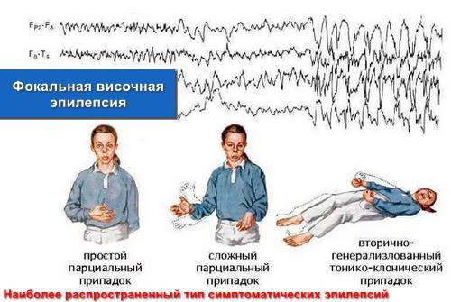 Фокальная височная эпилепсия