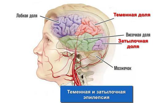 Теменная и затылочная эпилепсия