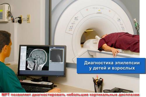 Диагностика эпилепсии у детей и взрослых