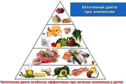 Кетогенная диета при эпилепсии