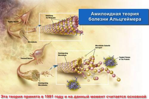Амилоидная теория болезни Альцгеймера