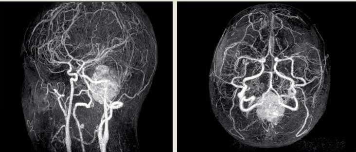 Ангиография сосудов головного мозга