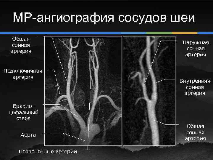 Ангиография сосудов шеи