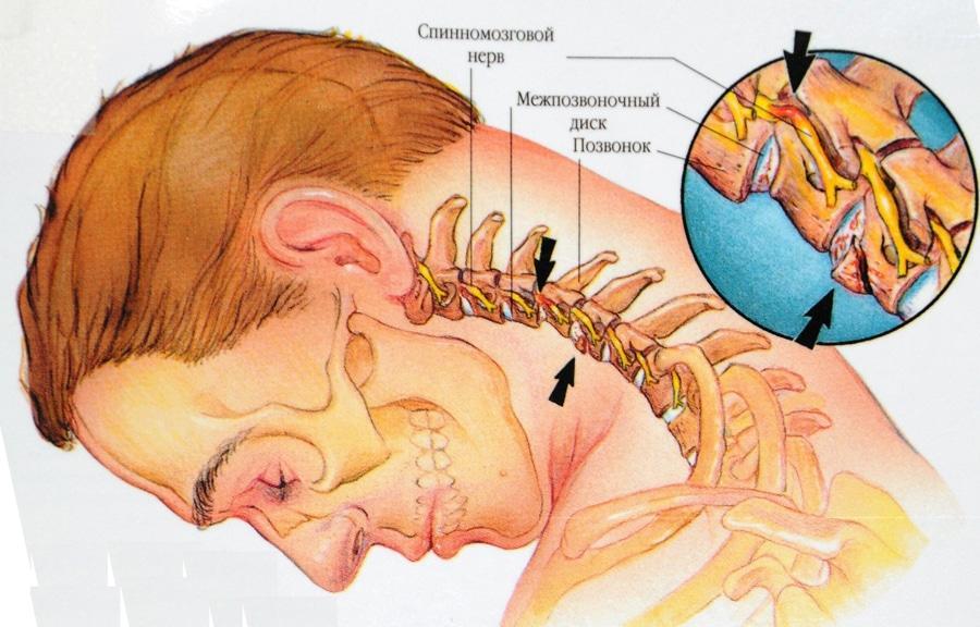 Боль в области шеи и затылка