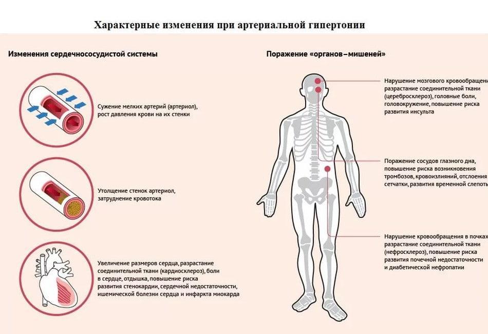 Боли при артериальной гипертонии