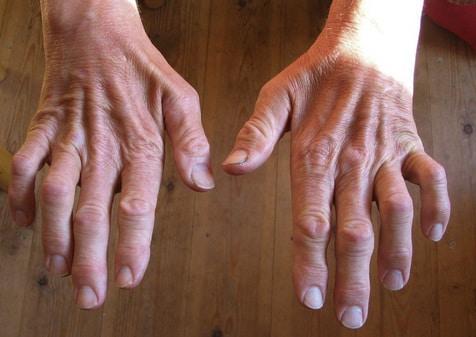 Атрофия мышечной ткани рук