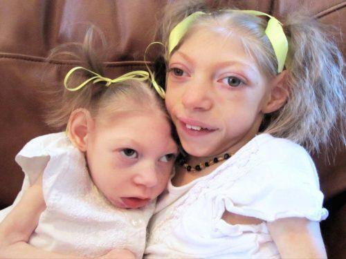 Девочки с синдромом Денди-Уокера