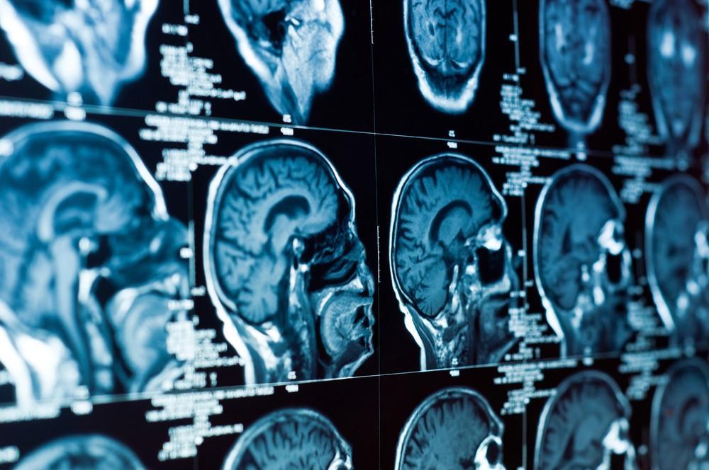 Косвенные признаки внутричерепной гипертензии мрт