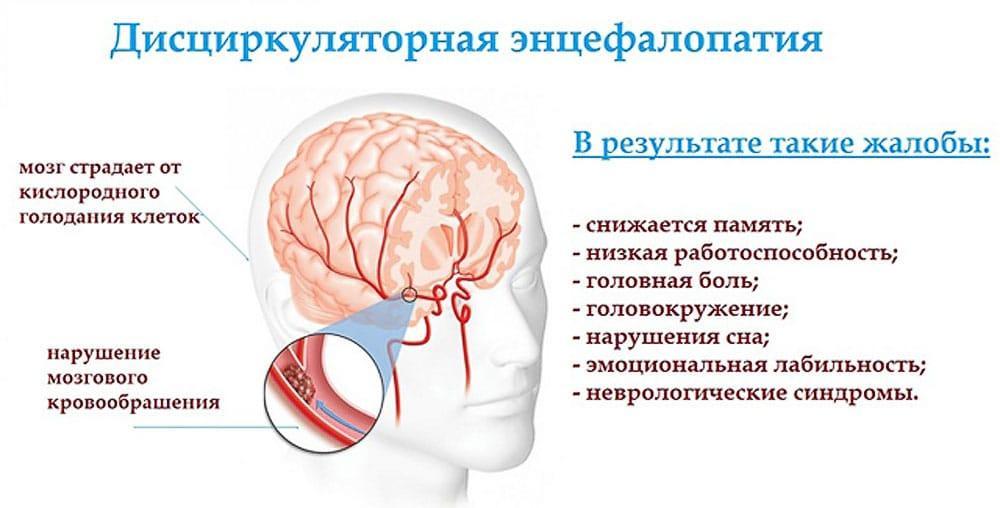 Дисциркуляторная энцефалопатия причины