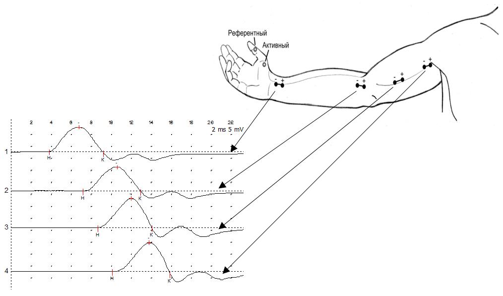 График ЭНМГ