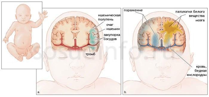 Ишемия у новорожденного