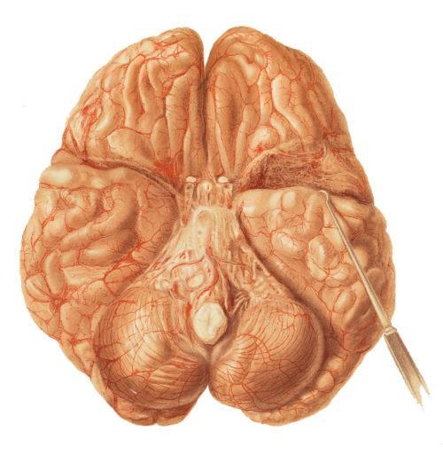 Классификация туберкулезного менингита