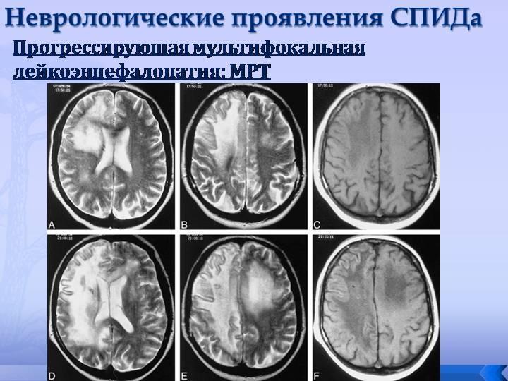 Лейкоэнцефалопатия на МРТ