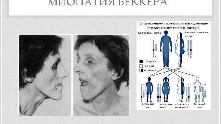 Миопатия Беккера