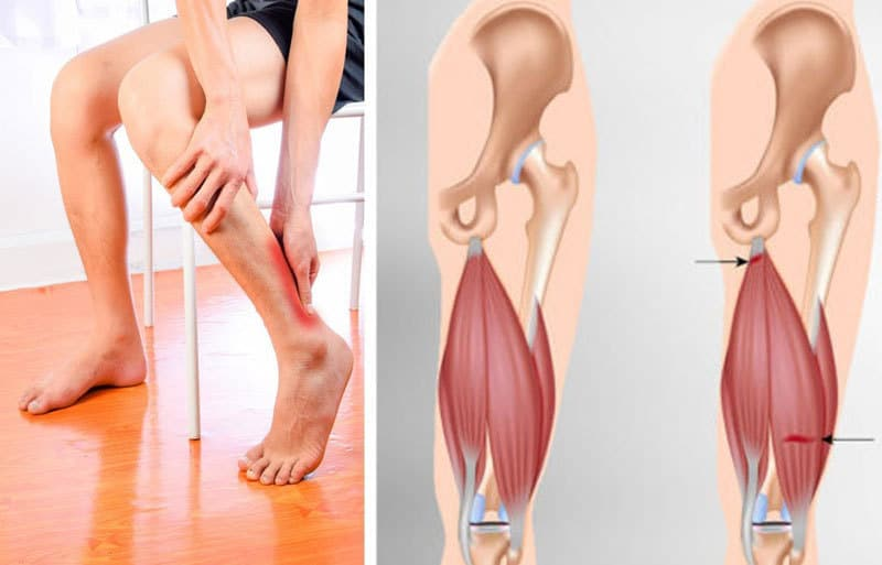 Мышечный спазм в ногах