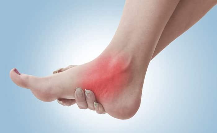 Полинейропатия нижних конечностей - что это, причины, симптомы