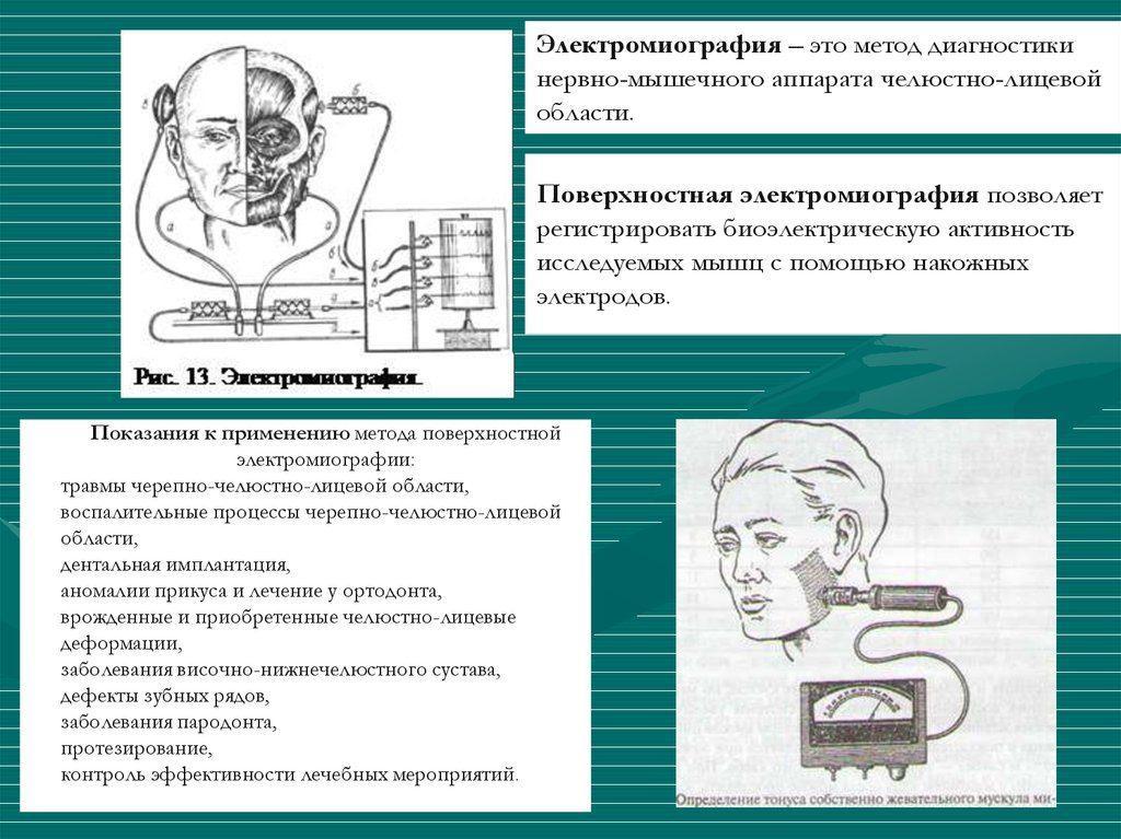 Поверхностная электромиография