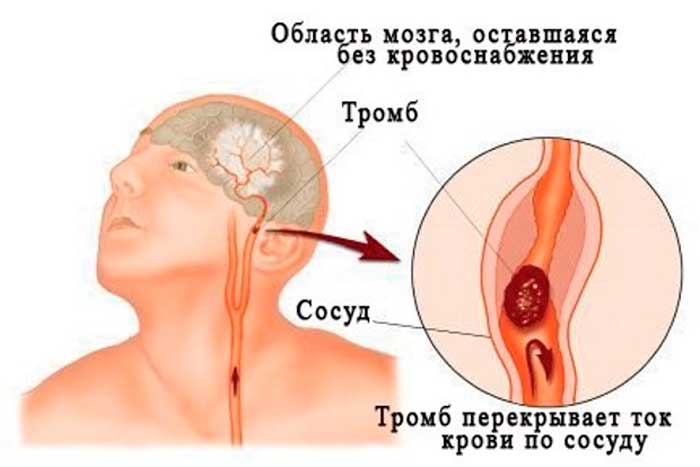 Причины энцефалопатии