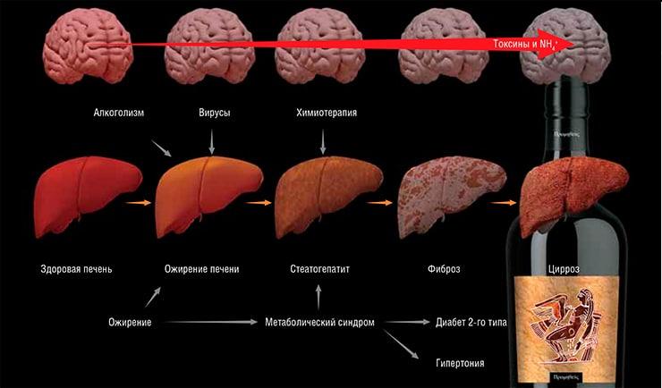 Причины развития печеночной энцефалопатии