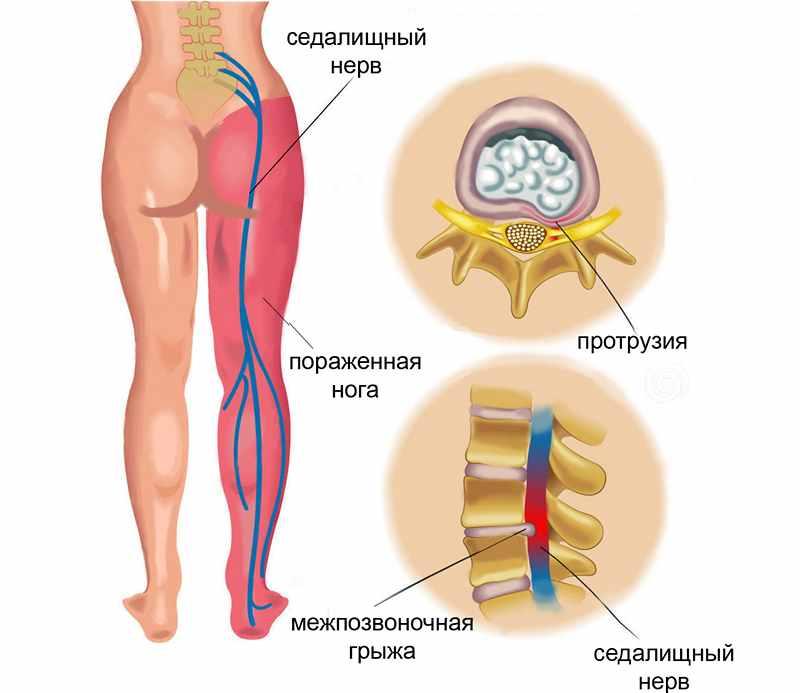 Причины защемления нерва в ноге