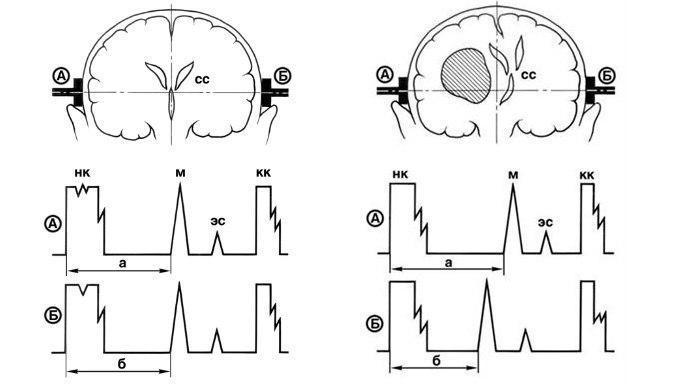 Расшифровка эхоэнцефалограммы