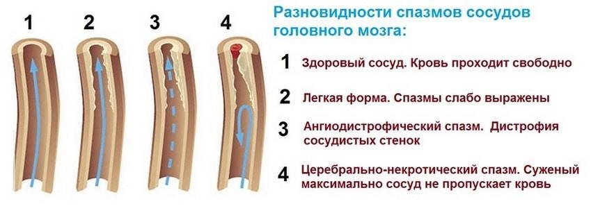 Сосудистые спазмы головного мозга симптомы