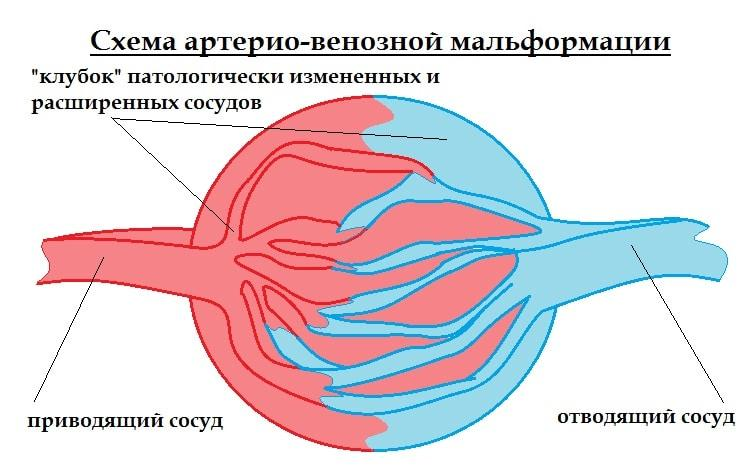 Симптомы мальформации сосудов головного мозга