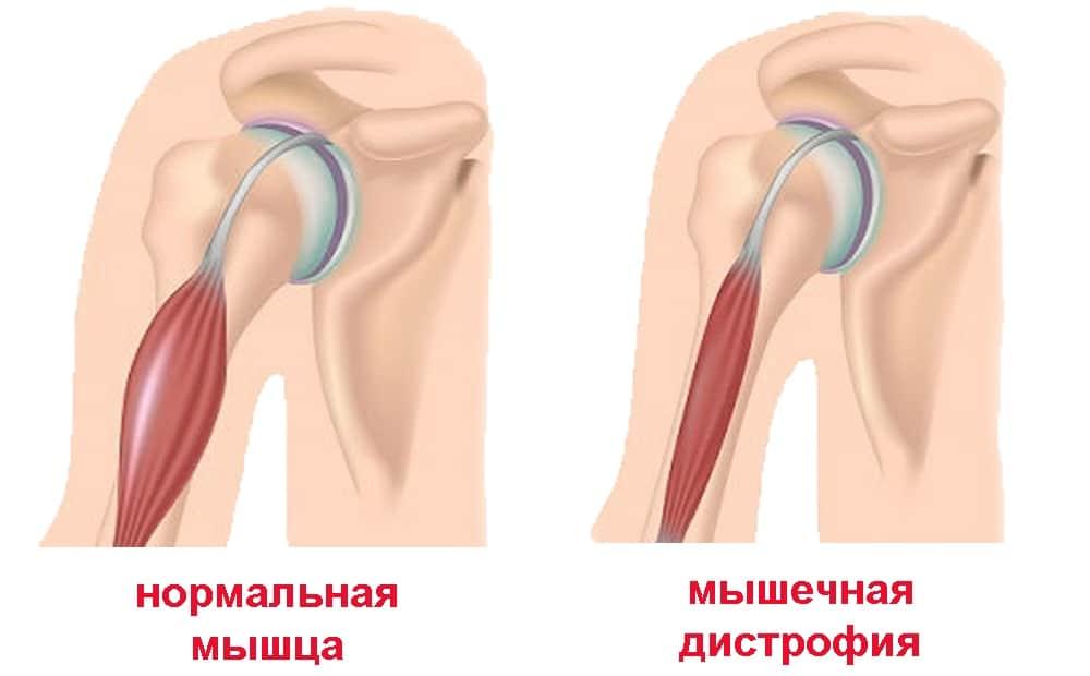 Симптомы миотонии