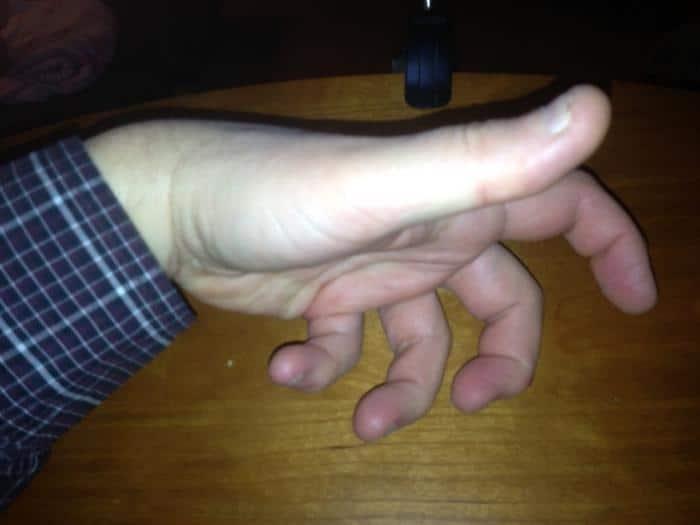 Когда сводит ноги и руки судорога лечение thumbnail