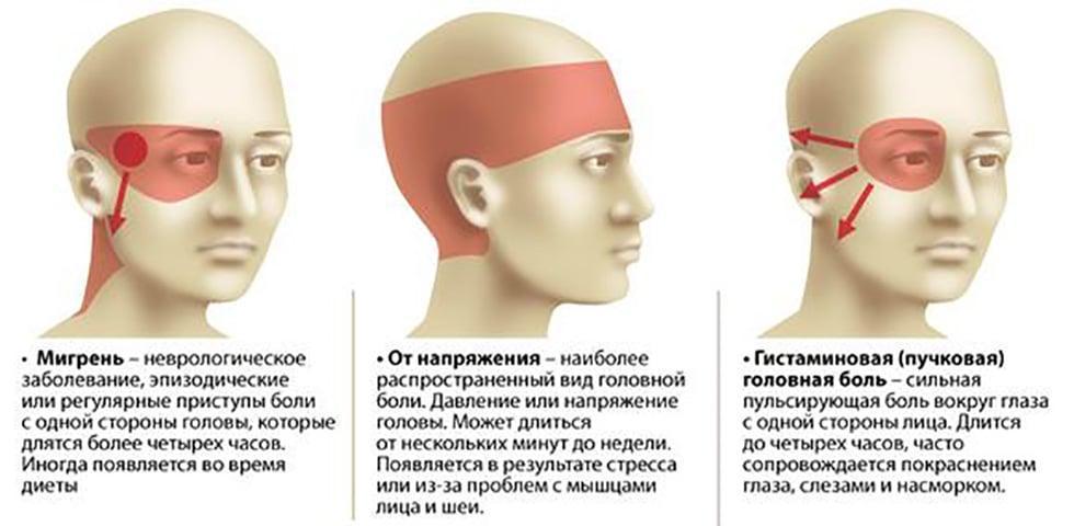Топография головной боли