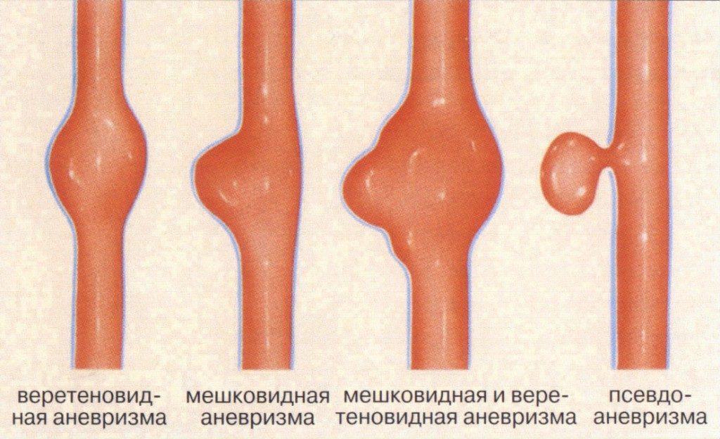 Виды аневризм головного мозга