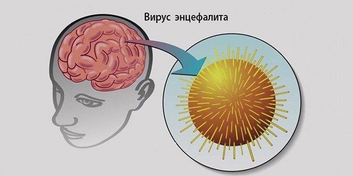 Вирус энцефалита